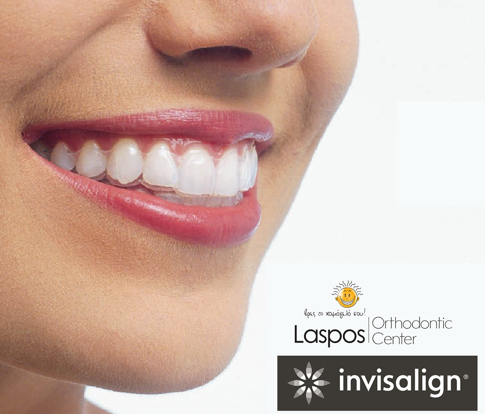 Invisalign: Είναι η κατάλληλη θεραπεία για εσένα